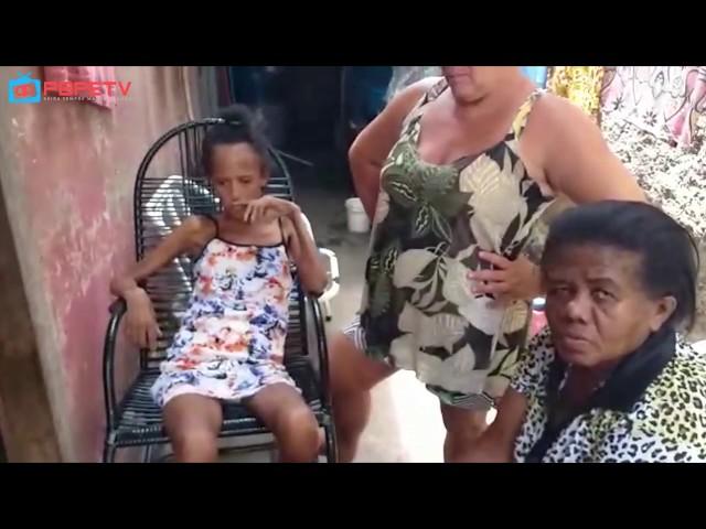 MULHER COM DOENÇA GRAVE PRECISA DE AJUDA EM ITAMBÉ
