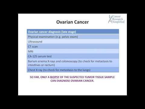 #21   OVARIAN CANCER DIAGNOSIS   By Cancer Education And Research Institute