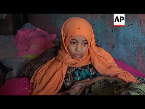 Paralysed girl, symbol of Yemeni child victims