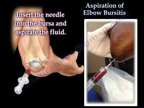 Aspiration Of Elbow Bursitis - Everything You Need To Know - Dr. Nabil Ebraheim
