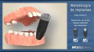 Tipos de restauraciones con implantes dentales
