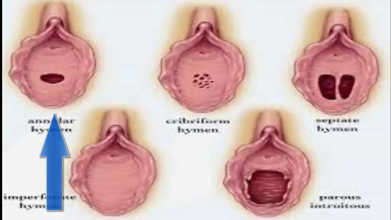 Vagina virgen