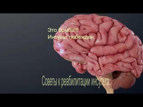 Микроинсульт- признаки, симптомы, лечение, последствия