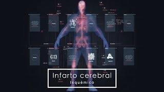 Cerebral enfermedad de isquemia