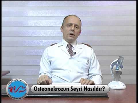 Osteonekrozun Seyri Nasıldır?