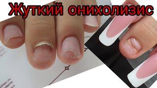 вырван ноготь с мясом ужасный маникюр онихолизис как с ним бороться наращивание ногтей на онихолизис