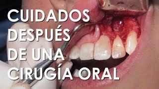 Reducir la mandíbula después de de Cómo inflamación la la cirugía rápidamente
