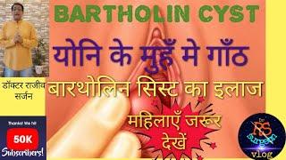 BARTHOLIN CYST/ABSCESS क्या होती है ।योनि के मुहँ मे गाँठ।बारथोलिन सिस्ट का सही इलाज।Cyst in vagina