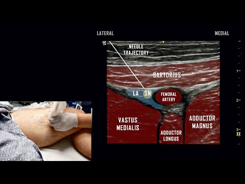 ultrasound-guided-adductor-canal-block-//-anatomy-review