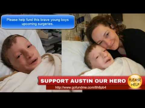 Support Austin Our Hero