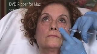 Cernes - Injection d'acide hyaluronique dans les cernes - Dr Raspaldo