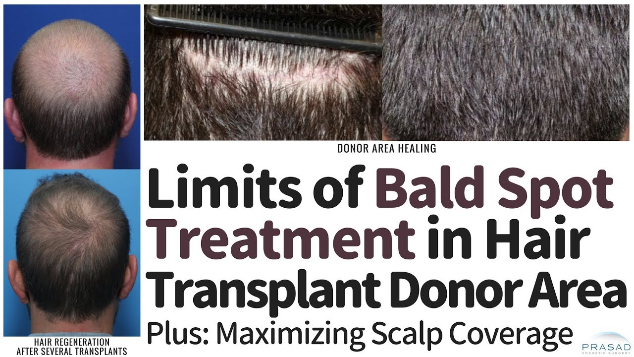 Why Treatment Of Bald Spots In Hair Transplant Donor Area Is Limited