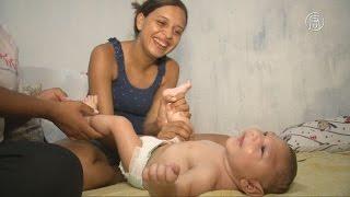 Бразильских матерей учат успокаивать детей с микроцефалией (новости)