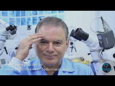 Endodontia de molar com destruição coronária