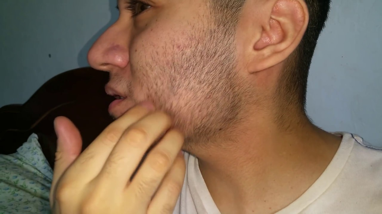 Minoxidil Works Beard 3 Month Update Youtube