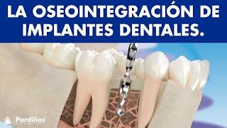 La oseointegración de los implantes dentales ©