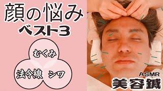 【美容鍼・美容鍼灸・小顔】「むくみ・ほうれい線・眉間のシワ」でお困りの方必見! 折橋式美容鍼 まっちゃんのなんでなん?ASMRシリーズ 