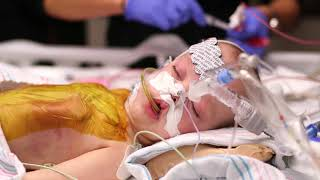 Formerly conjoined twin girls resting and recovering after successful surgery in separate beds