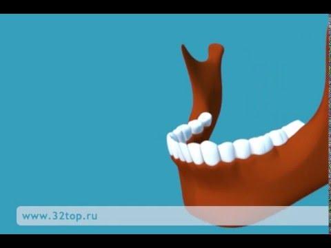 Афтозный стоматит. Симптомы и методы лечения стоматита