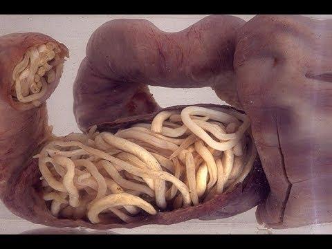 ★Как вывести ГЕЛЬМИНТЫ из кишечника. Лекарства от ГЛИСТОВ. Народные средства от ПАРАЗИТОВ
