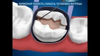 Качественное лечение кариеса(Лечение зубов, лечение кариеса зуба в стоматологии. Лечение зубов в стоматологии в Москве., 2016-03-29T13:04:01.000Z)