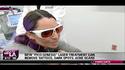 NEW enlighten laser for laser tattoo removal featured on FOX News