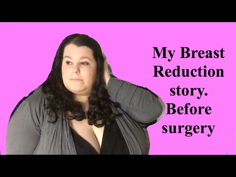 My Breast Reduction story. Before surgery: The process to get approved, Picking a surgeon, Issues.