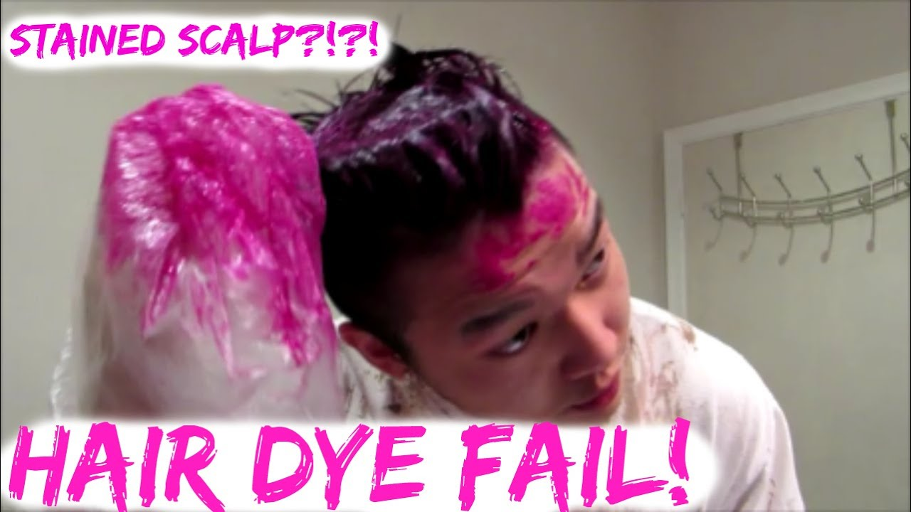 HILARIOUS DIY HAIR DYE FAIL! (STAINED SCALP) - YouTube