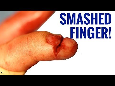Childu0027s Finger Versus Door - Smashed Finger Injury  sc 1 st  YouTube & Childu0027s Finger Versus Door - Smashed Finger Injury - YouTube pezcame.com