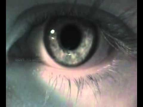 BINOCULAR VISION - BIO-VISION.flv