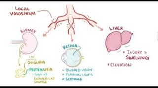Obstetri -  Pre Eklampsia dan Eklampsia.