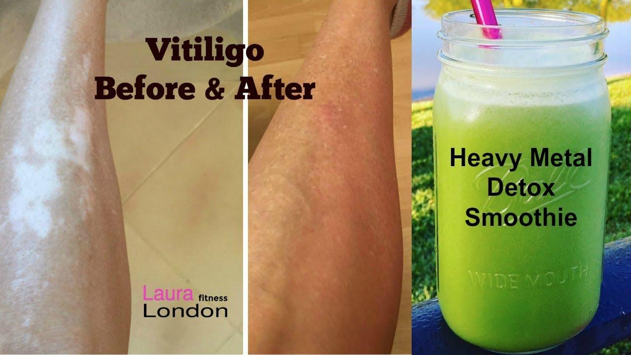 Medical Medium Healing From Hashimoto's & Vitiligo