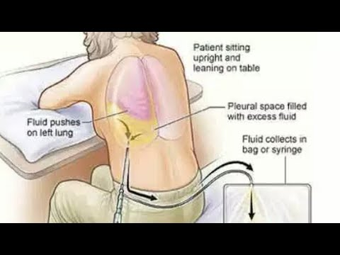Treatment of drying of water & pus in the lungs