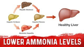 How to Lower Your Ammonia From Liver Cirrhosis and Other Conditions