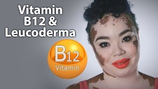 Vitamin B12 & White Patches/Leucoderma