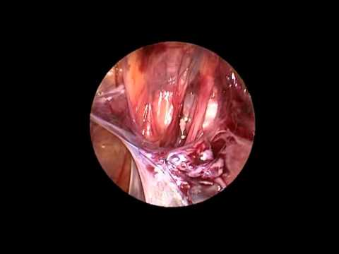 Varicocelectomy: Single-port laparoscopic technique - YouTube