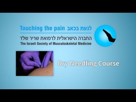 Dry Needling Course - YouTube
