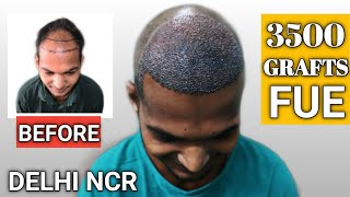 Sonu Mishra hair transplant in GURUGRAM (Delhi NCR) | Best hair transplant India | Sourav Mridha