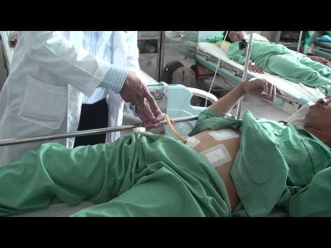 Hậu phẫu viêm phúc mạc ruột thừa