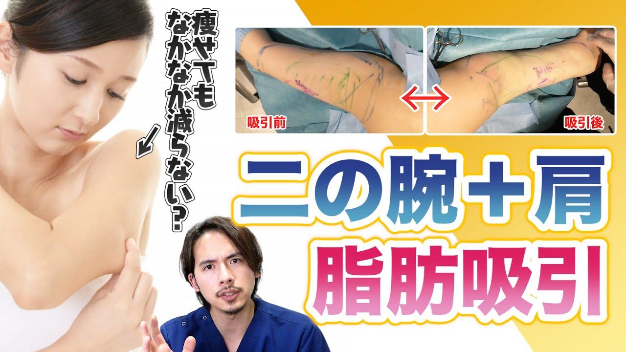 【スッキリ】二の腕+肩の脂肪吸引の手術を解説。傷はどこにつくの?【ドラゴン細井】