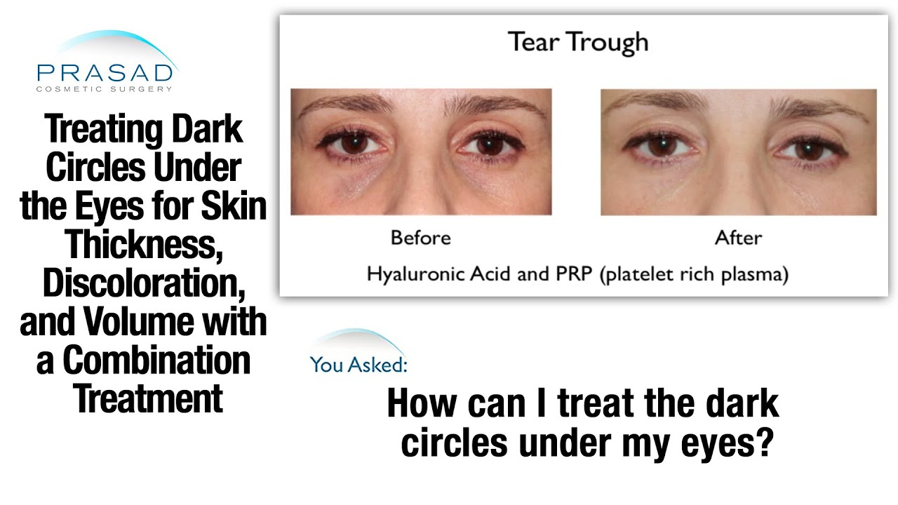 eye cream for dark circles and bags