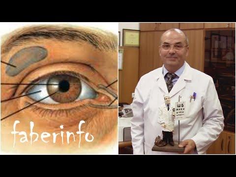 офтальмолог онлайн