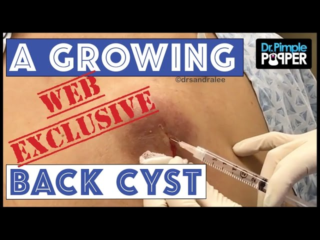 WEB EXCLUSIVE SNEAK PEEK: Growing & Inflamed Cyst On The Back