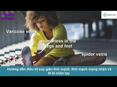 Hướng dẫn điều trị suy giãn tĩnh mạch, tĩnh mạch mạng nhện và tê bì chân tay