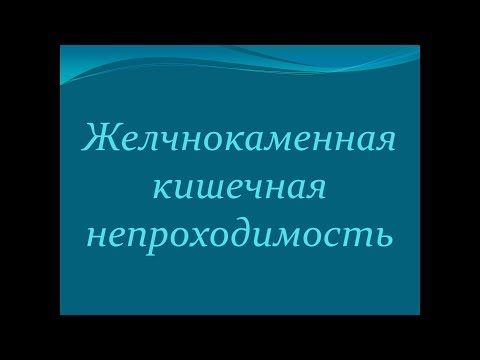 Билиарный илеус/ЖКБ как причина кишечной непроходимости/ Внутренний свищ