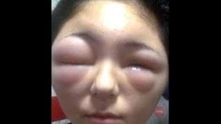 Ужасные последствия после укусов пчел. The terrible consequences after the bee stings.