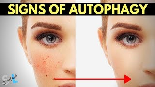 Signs of Autophagy - How to Know If You're In Autophagy