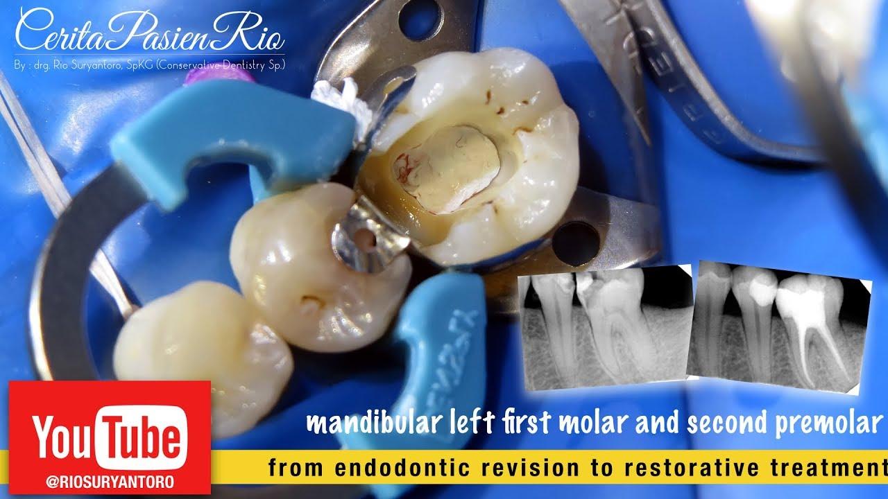 Perawatan Gigi Saluran Akar Dan Penambalan Endodontic Treatment