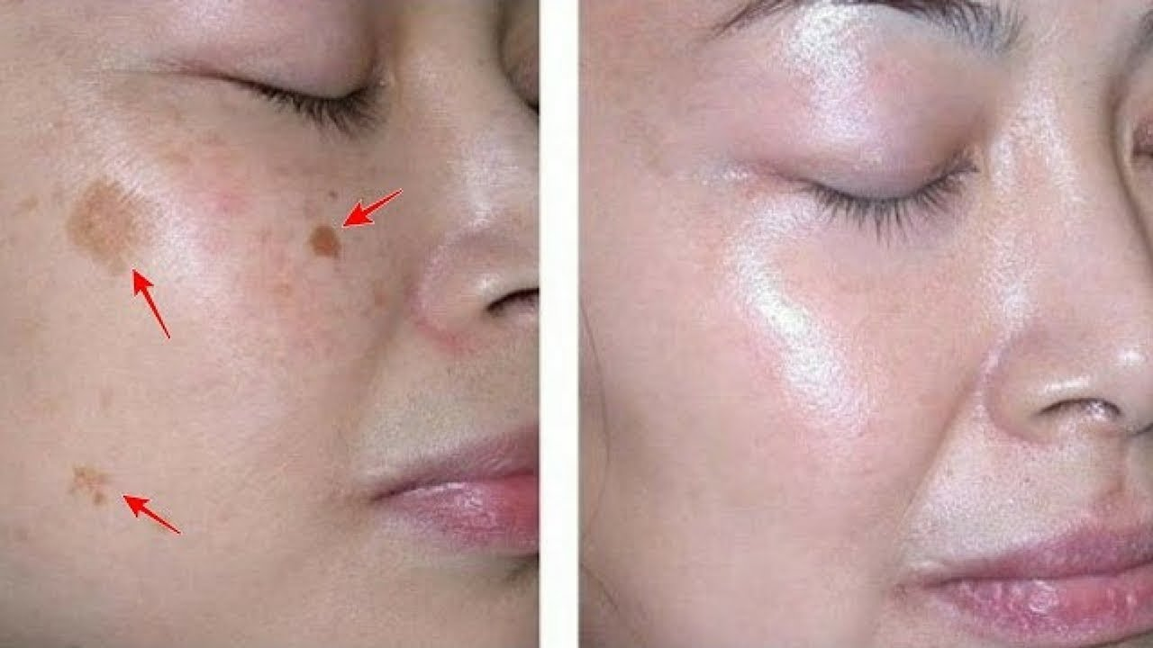 How to remove stains on the face 45