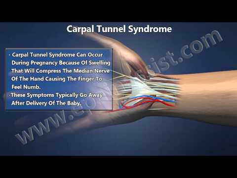Carpal Tunnel Syndrome Explained! Know The Causes, Symptoms, Treatment For CTS